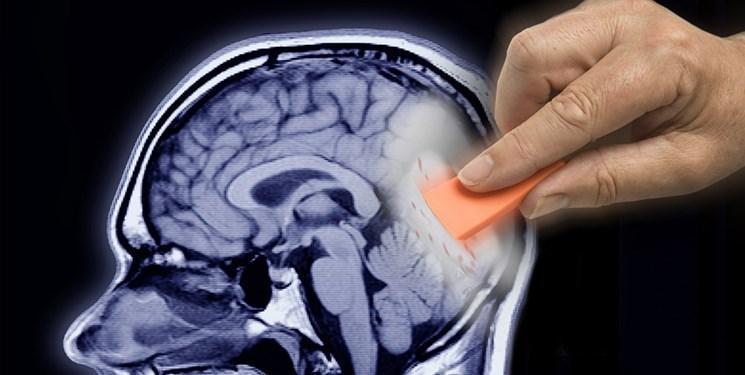 آلزایمر در کمین مبتلایان به کلسترول بالا