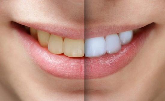 بلیچینگ دندان ضرر هم دارد؟